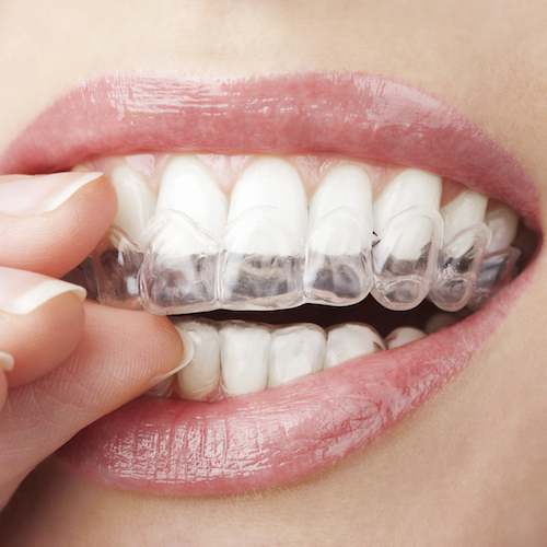 A closeup of a mouth with a hand putting on Invisalign custom aligners.