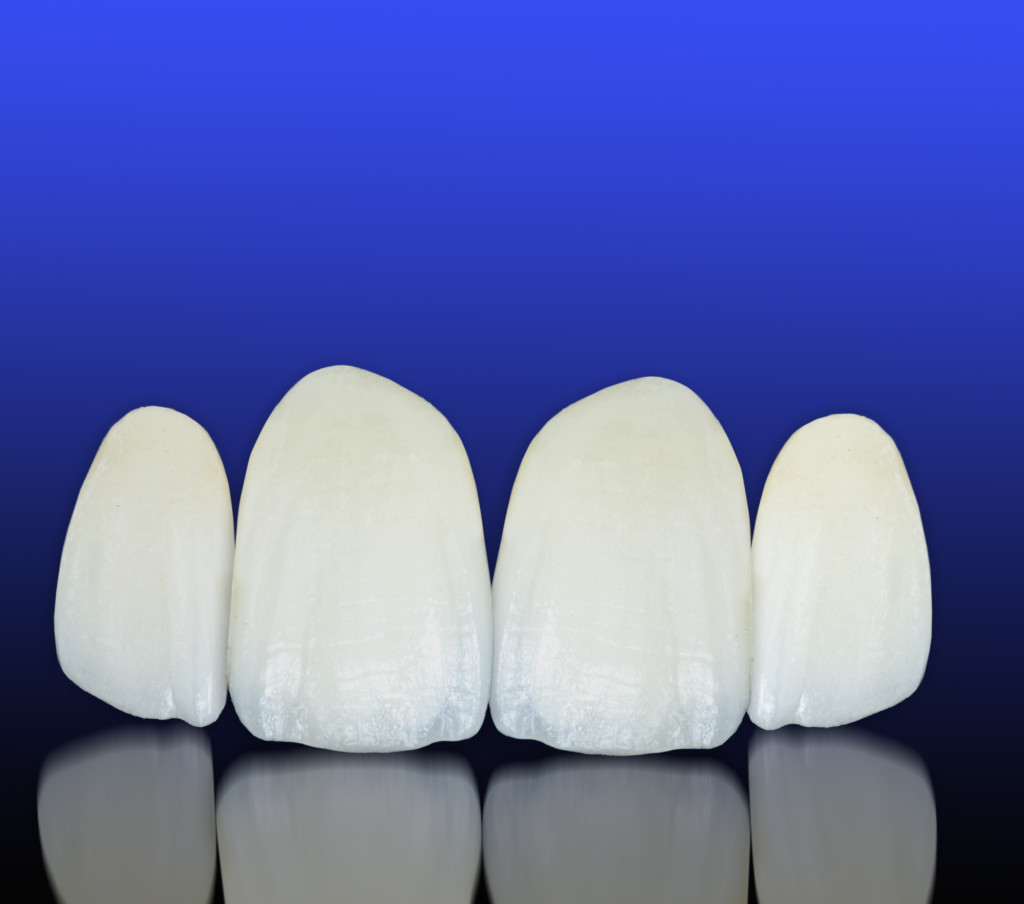 Metal free ceramic dental crowns - cosmetic and restorative dentistry