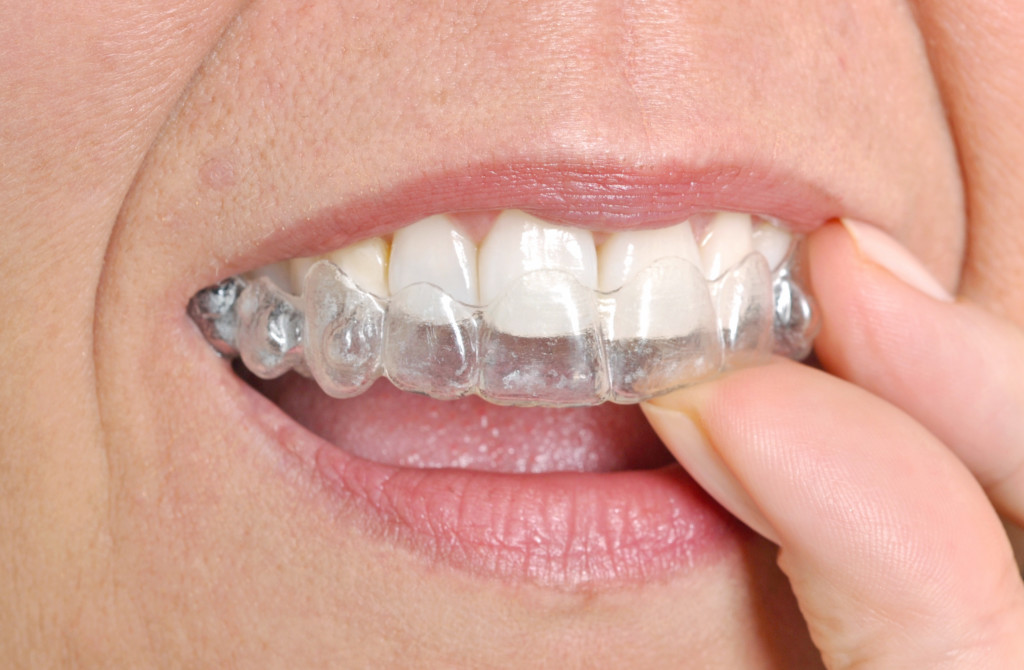 Invisible braces - cosmetic and restorative dentistry
