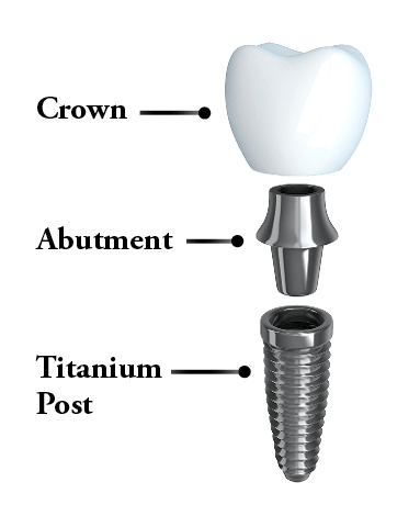 Dental implants Harrisonburg, VA - Graphic showing the parts of a dental implant, which include a crown, abutment, and titanium post