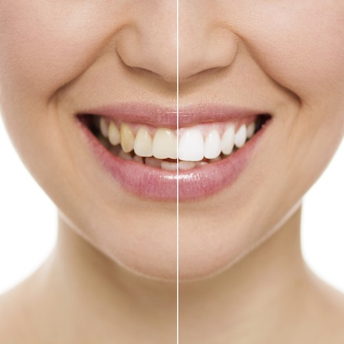 A before and after case study shows the dramatic effect teeth whitening can have on your smile.