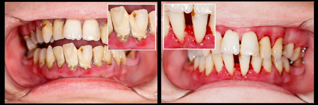 Human denture on dental treatment - part of before and after series.