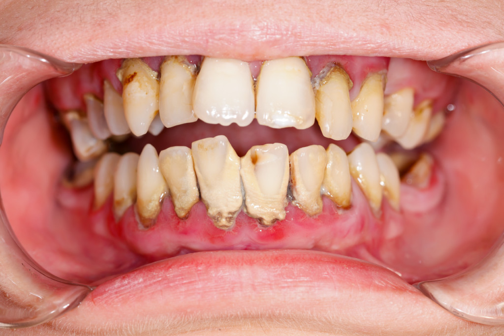 Human mouth before dental treatment plaque on teeth - how to prevent bad breath